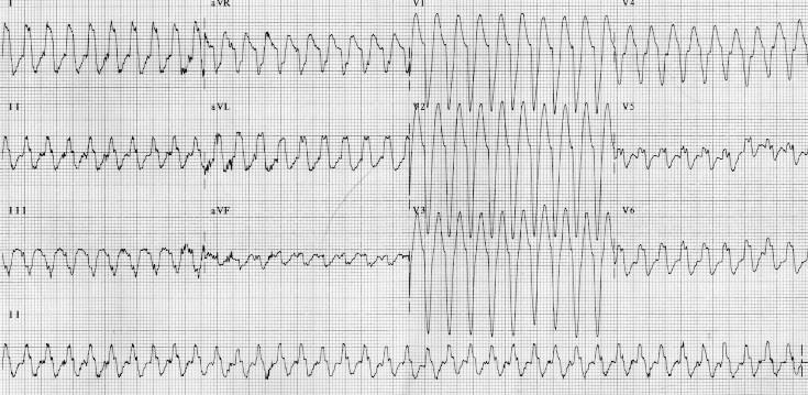 ekg of the month