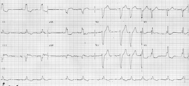 view the twelve lead ekg  ifyour browser does not support color backgrounds