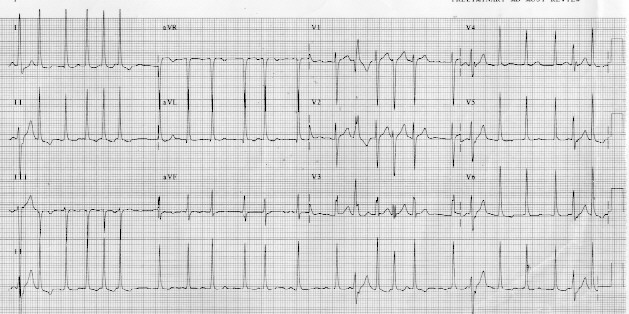 view the twelve lead ekg  if yourbrowser does not support color backgrounds