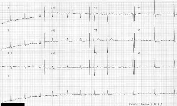 #18 Totally irregular rythm with absent P waves of atrial fibrillation .