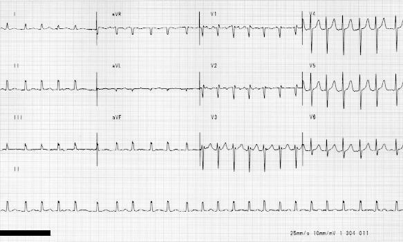 tombstones on ekg. in seconds V+fib+ekg
